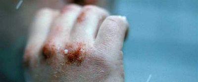 4-29-14-sean-bobbitt-man-with-bloody-hand